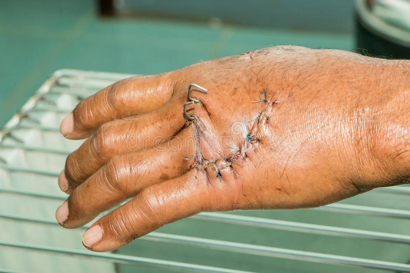 Wound and stitches. Hand was accident and suture stitch royalty free stock photos