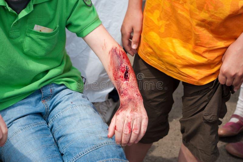 wounded стоковая фотография
