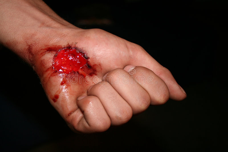 Wounded. A hand with a bad wound stock image