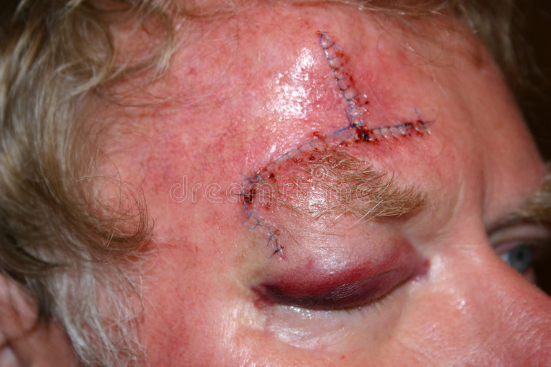 Download Wounded stock image. Image of forehead, sore, bruised, health - 69193