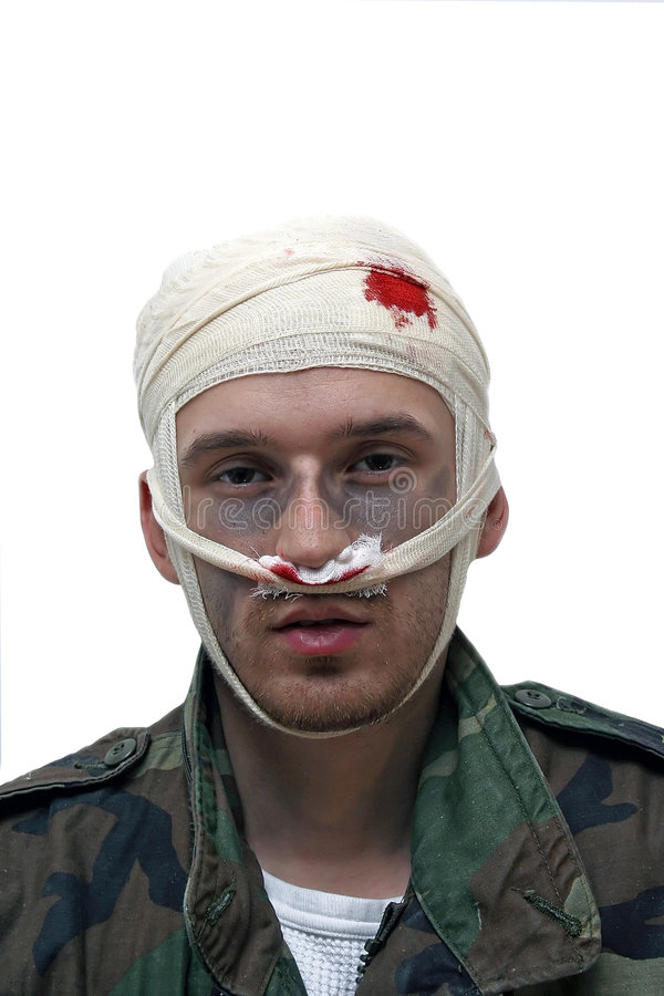 Download Wounded person stock photo. Image of diagnosis, illness - 1602910
