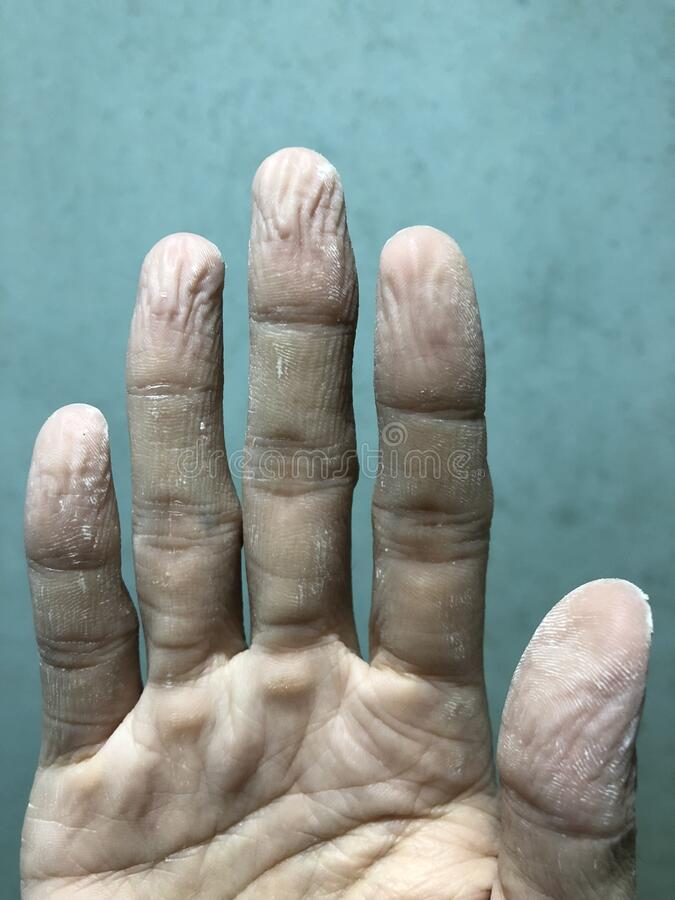 Free Wrinkled Or Pruney Right Hand And Fingers Of Asian Adult Young Man Because Of Soak In The Water For A Long Time. Royalty Free Stock Photography - 185860087