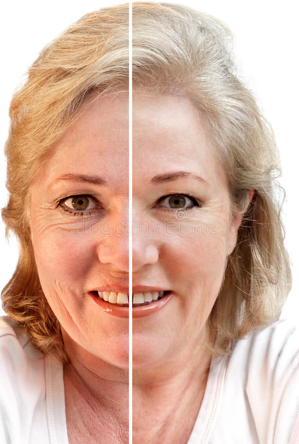 Free Wrinkled Or Smooth Skin Royalty Free Stock Image - 19477476