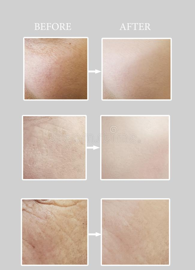 Wrinkles regeneration difference concept result removal collage before and after, procedures. Wrinkles  aging before and after, removal   lifting  collage result stock photography