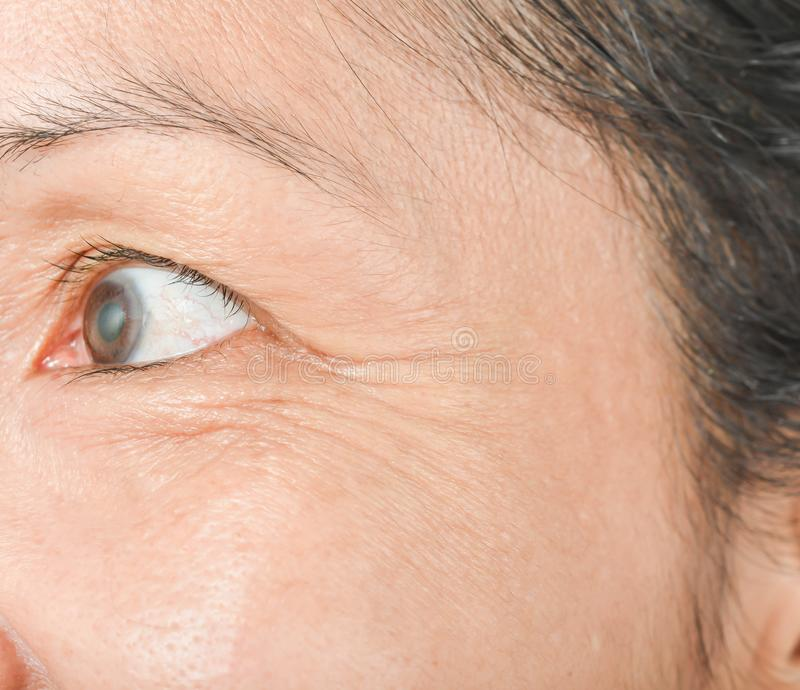 Wrinkles around the eyes and skin problems. In women royalty free stock photo