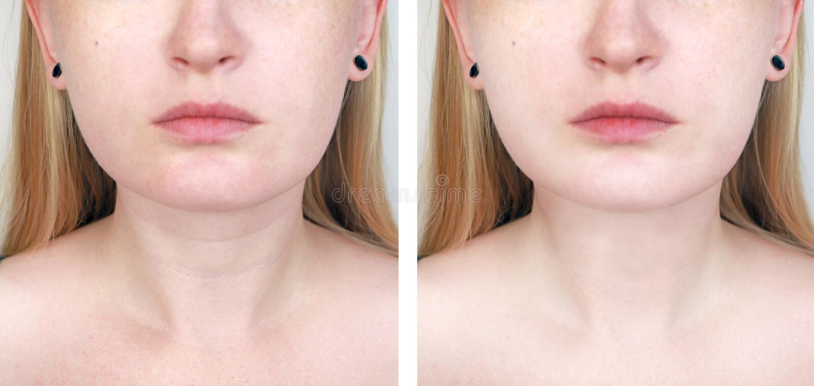 A cosmetologist prepares the patient for surgery: contour plastics of the neck, mesotherapy or botulinum therapy. Wrinkles and royalty free stock photos