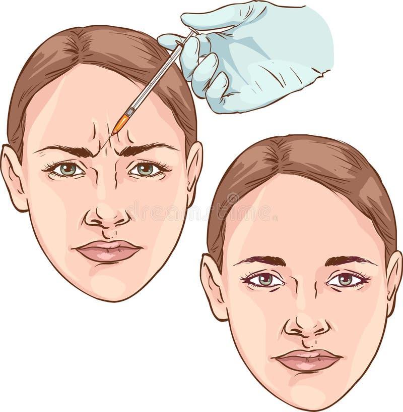 Wrinkles on the forehead. rejuvenation. plastic surgery.  royalty free illustration