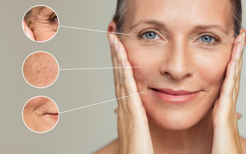 Wrinkles and skin imperfection stock photography
