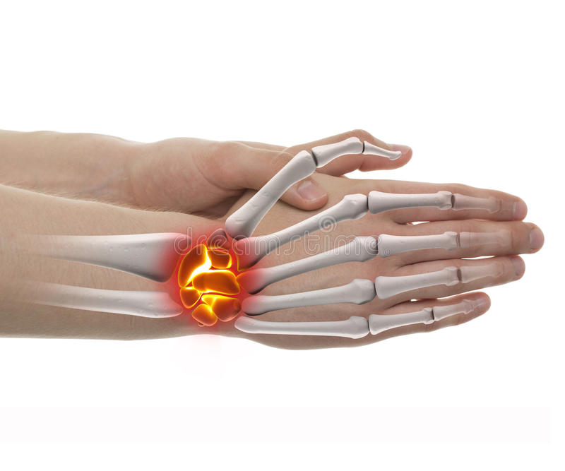 Wrist Pain - Studio shot with 3D illustration isolated on white stock illustration