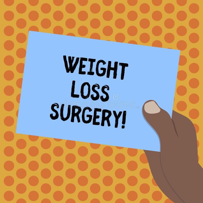 Writing note showing Weight Loss Surgery. Business photo showcasing do on stomach intestines to help demonstrating. Extreme obesity Drawn Hu analysis Hand stock illustration