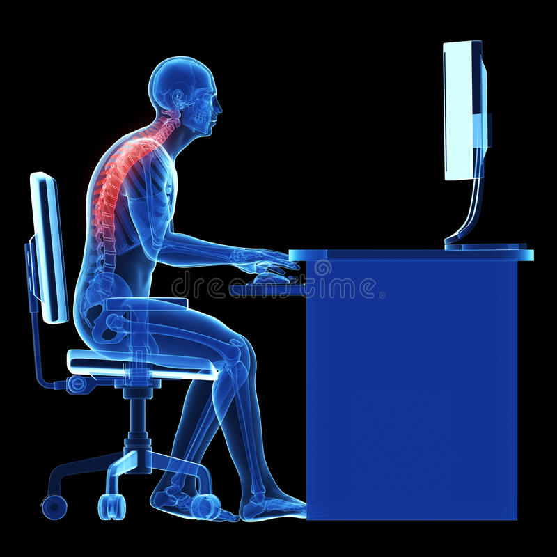 Wrong sitting posture stock illustration