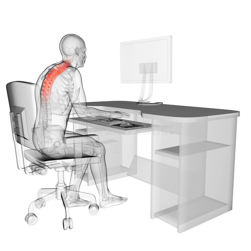 Wrong sitting posture royalty free illustration