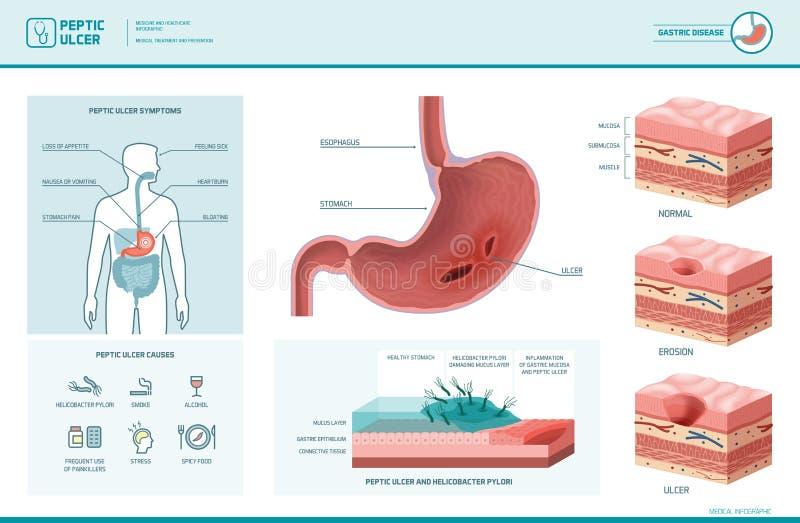 Wrzodu trawiennego i helicobacter odźwierniki infographic royalty ilustracja