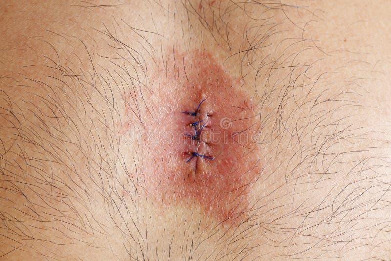 Wundinfektion lizenzfreie stockbilder
