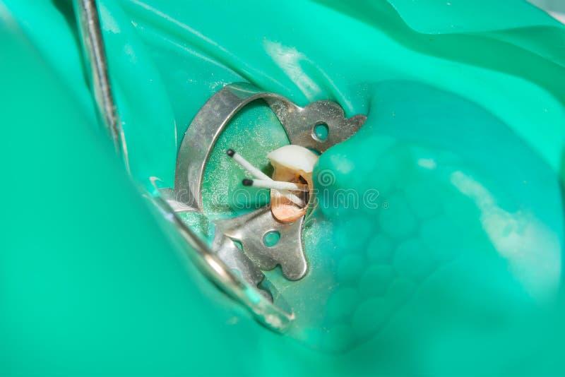 Wurzelbehandlung der Zahnnahaufnahme Reinigung der Wurzeln von lizenzfreies stockbild