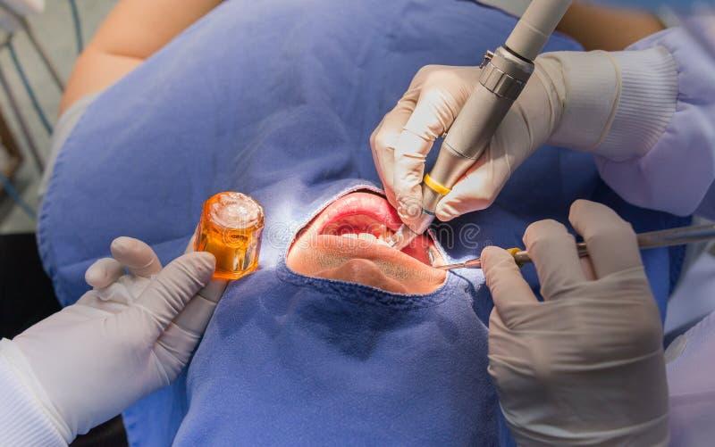 Wurzelkanalchirurgie lizenzfreie stockfotos