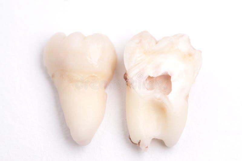 Wyciągany mądrość ząb ciie w połówce na białym tle zdjęcia royalty free