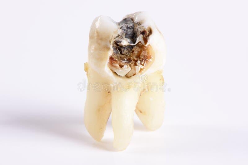 Wyciągany molarny ząb fotografia stock