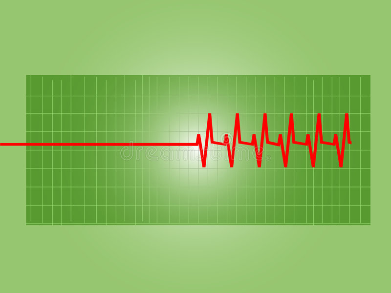 wykresu anormalny serce s ilustracji