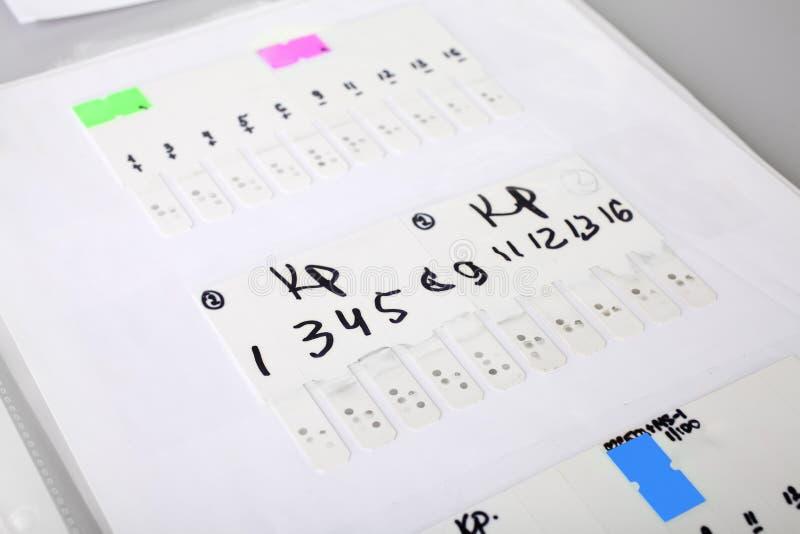 Wyniki testu (dane na nauce wirusy) obraz stock