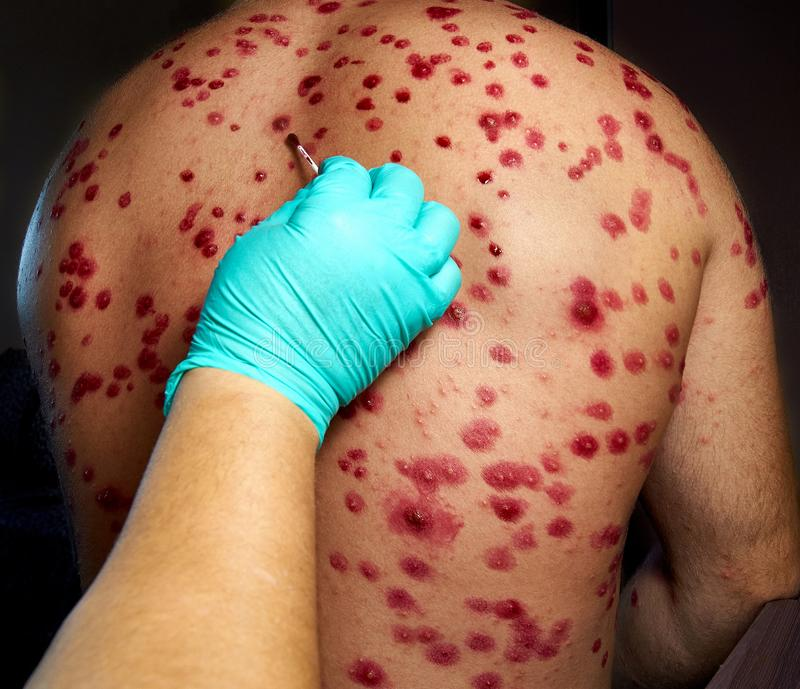 wysypka skórna Półpasiec, choroba, półpasiec, wirus ospy wietrznej-półpaśca fotografia stock