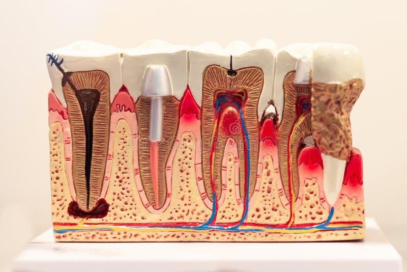 Wzorcowy eksponat dla instalaci stomatologiczni wszczepy i zli zęby z łupem obraz royalty free