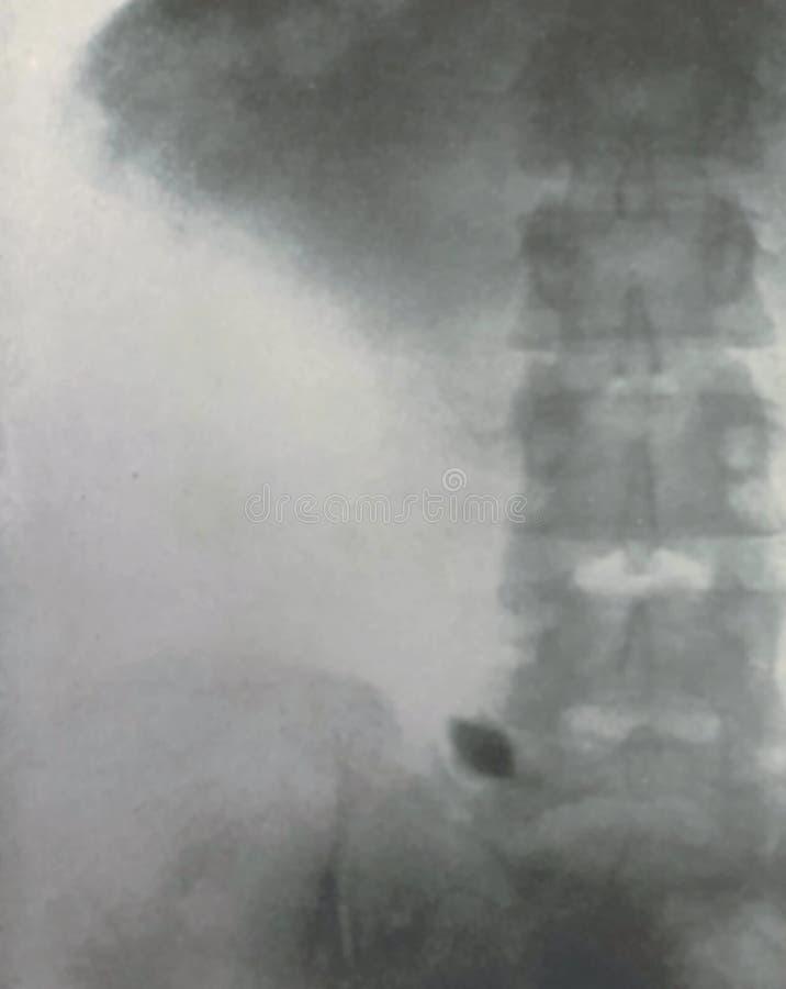 X光检查腹部骨盆炮弹碎片战争受害者 库存图片