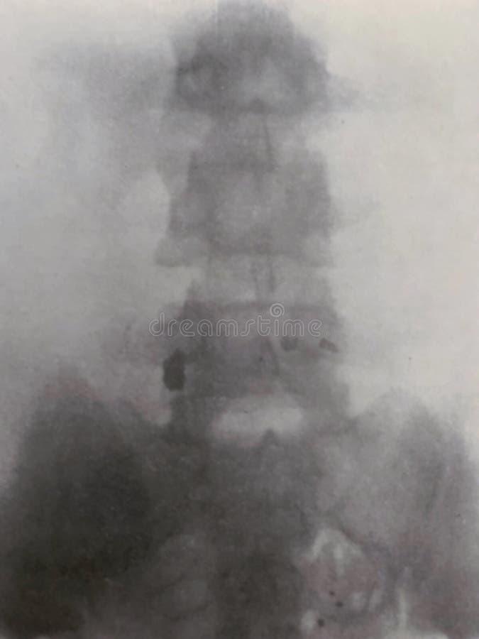 X光检查腹部骨盆炮弹碎片战争受害者 库存照片