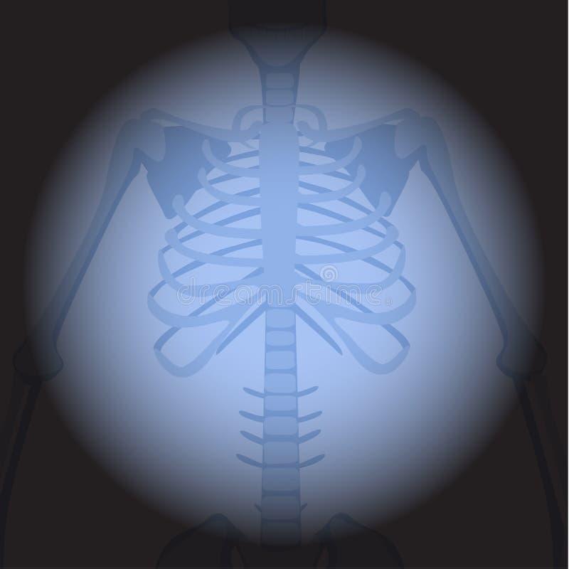 x光芒肋骨 向量例证