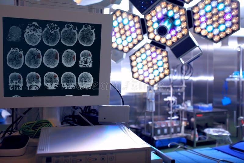 X射线照片在神经外科学的手术室 库存图片