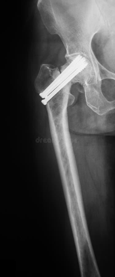 X射线辐射上弦与斜端杆结点的图象,侧向看法 免版税库存图片