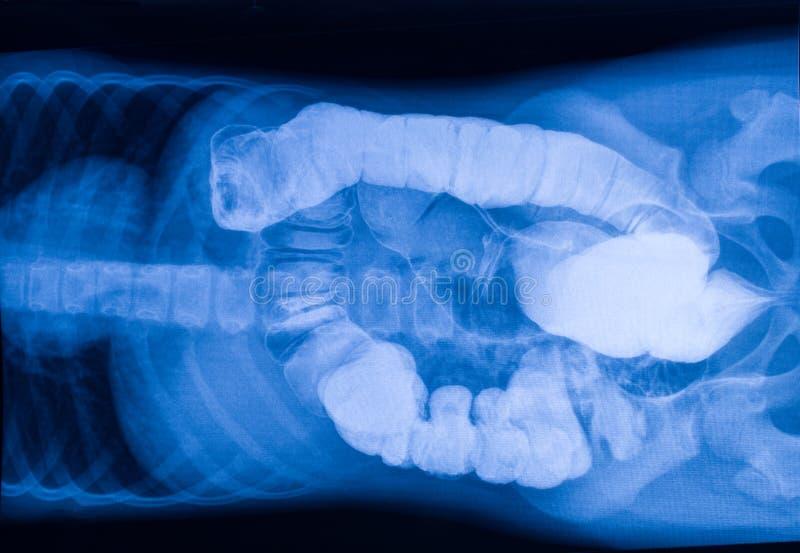X射线辐射肚腑的图片有外来物体的 库存图片