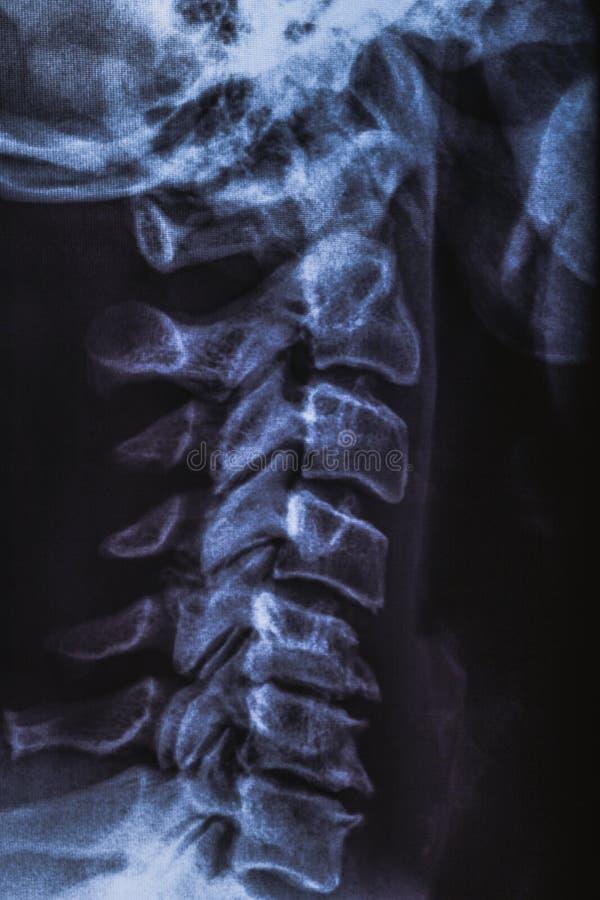 X射线辐射造影或伦人的脖子,医疗放射学概念 库存图片