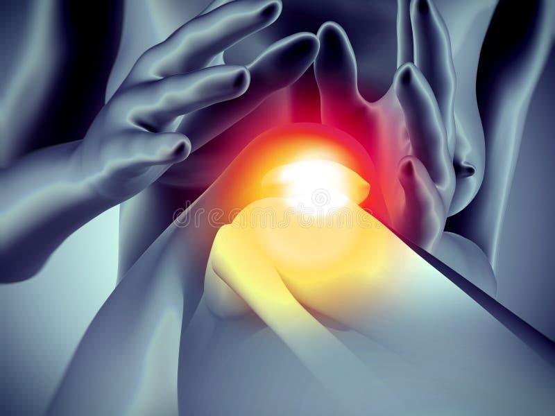 膝盖痛苦 向量例证