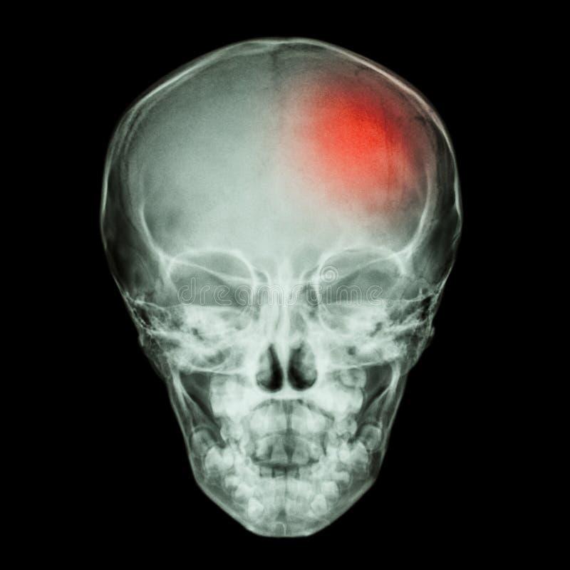 X- κρανίο ακτίνων του παιδιού και του κτυπήματος (εγκεφαλοαγγειακό ατύχημα) διανυσματική απεικόνιση