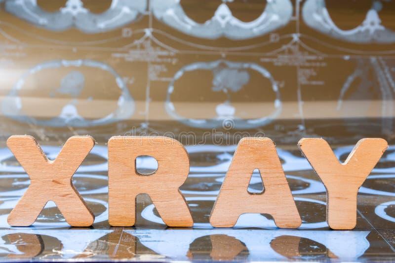 X-射线作为在医学的一个诊断过程 词X-射线由三维信件,它组成是特写镜头对前景 库存照片
