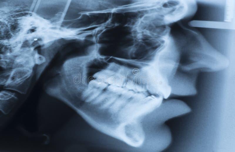 X-射线侧向头部测量法的影片 库存照片