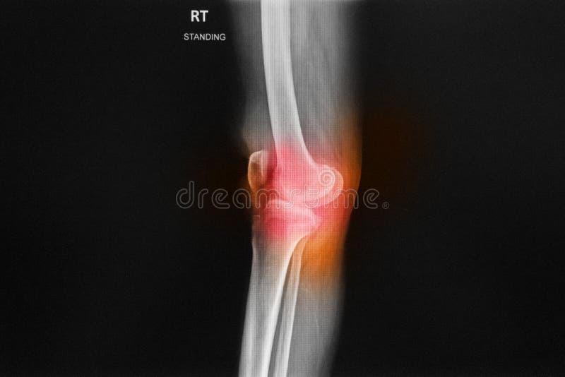 X-射线右膝联接展示狭窄空间 免版税图库摄影