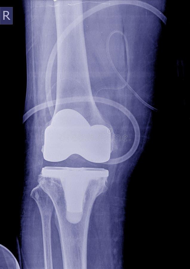 X-射线图象岗位操作共计膝盖替换 库存照片