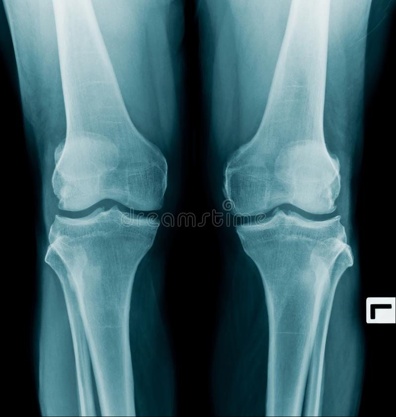 X-射线图象OA膝盖双方 免版税库存图片