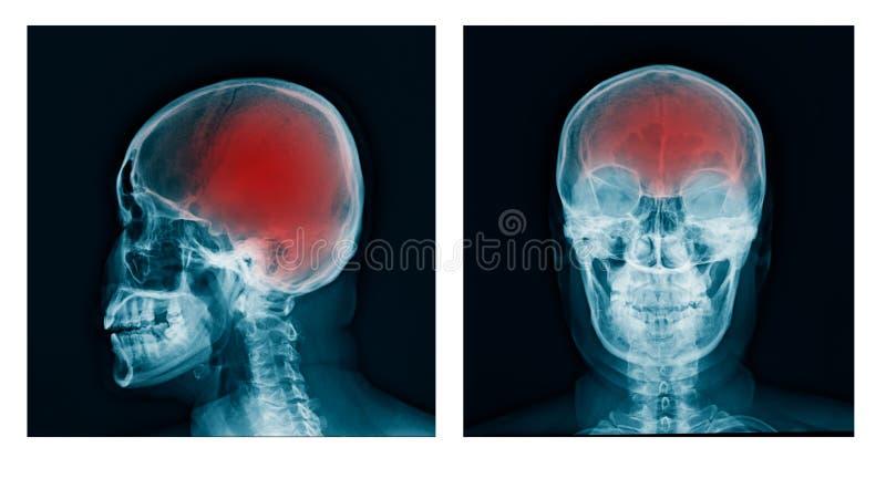 X-射线头骨 库存照片