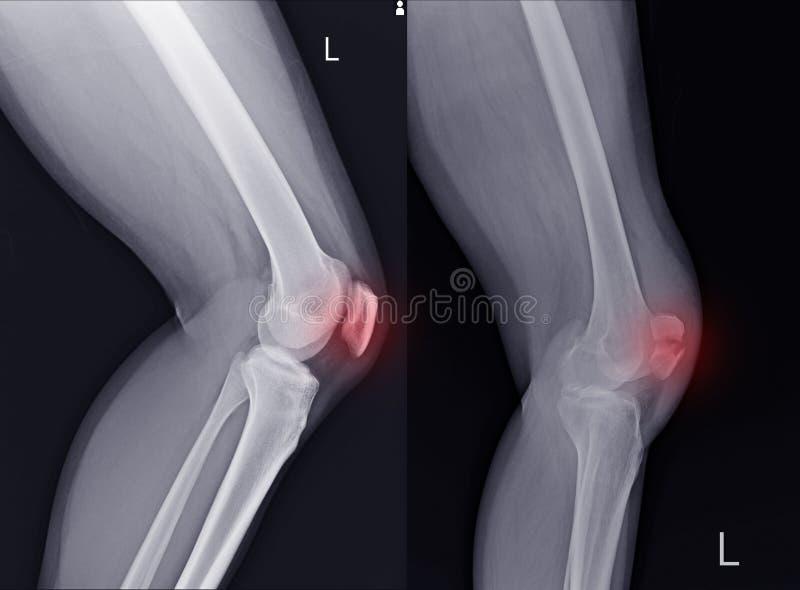 X-射线左膝盖侧面陈列膝盖骨法线和破裂 库存照片