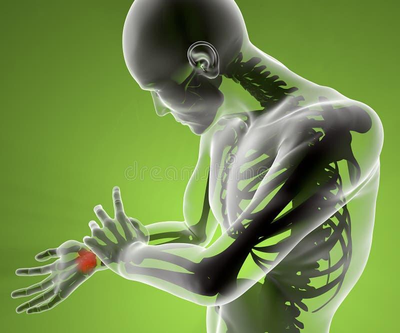 X-射线手臂间的腕子痛苦 库存例证