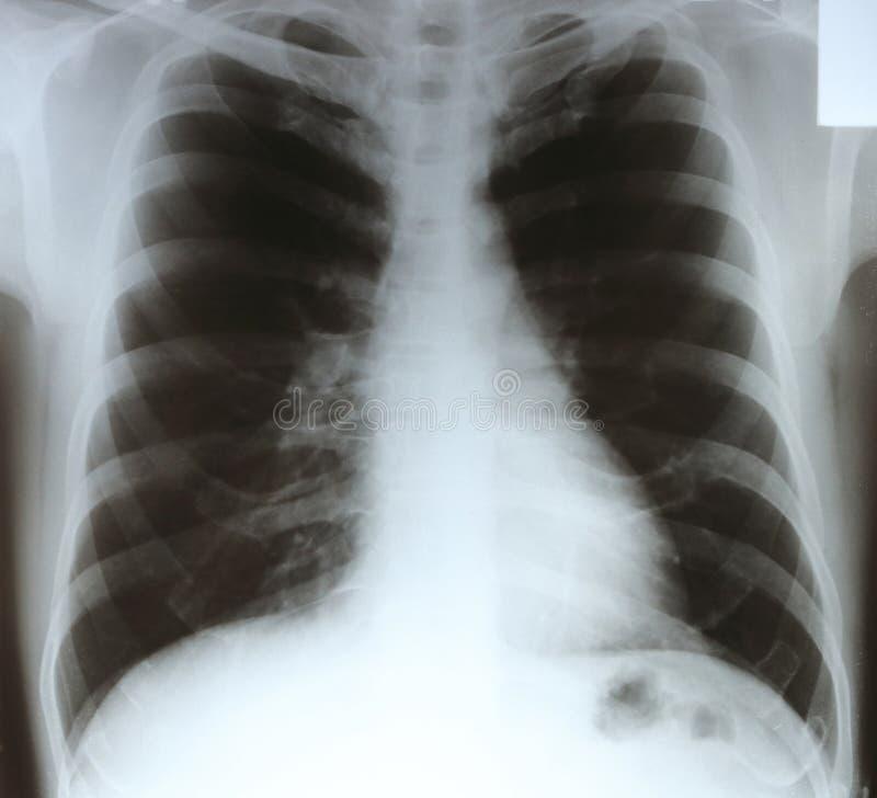 X-射线胸口影片 库存图片