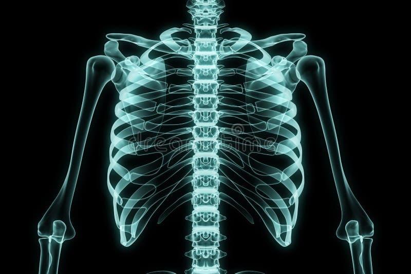 X-射线胸口 库存例证