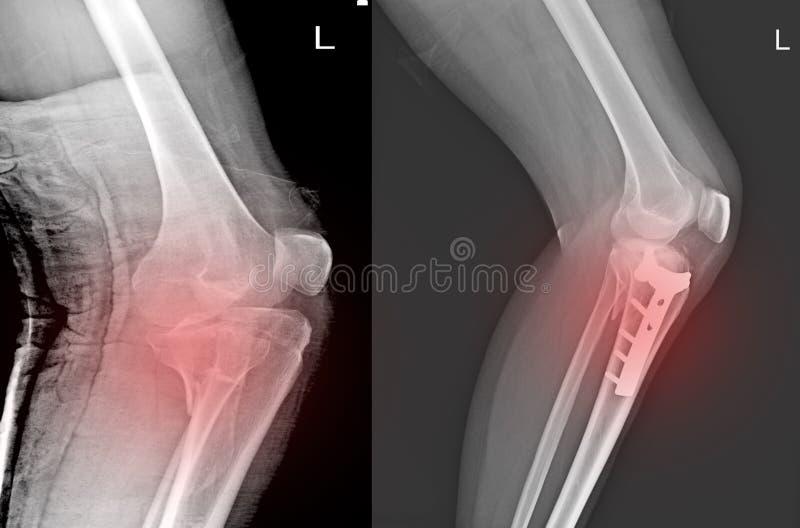 X-射线膝盖关节破裂接近胫骨和岗位固定破裂接近胫骨 库存照片