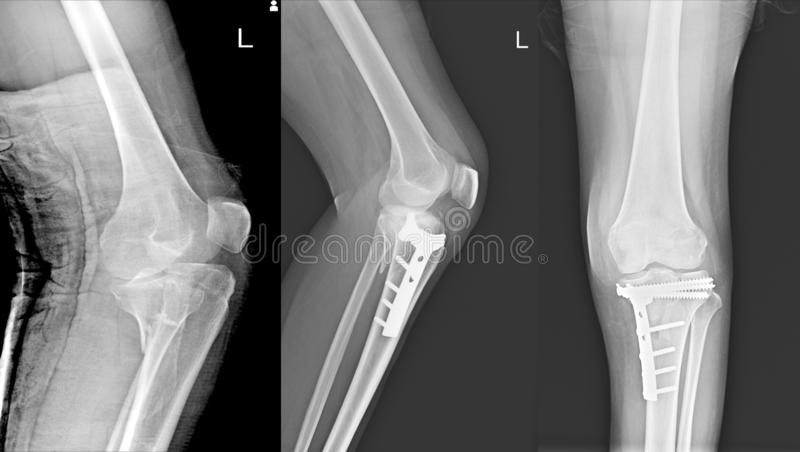 X-射线膝盖关节破裂接近胫骨和岗位固定破裂接近胫骨 免版税图库摄影