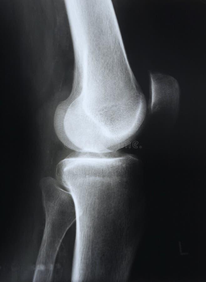 X-射线 图库摄影