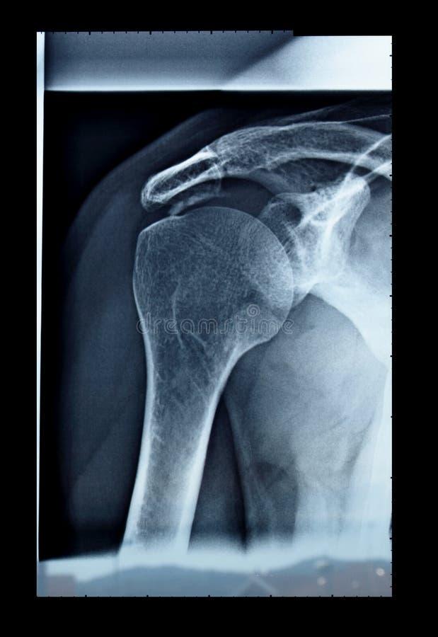 X-射线 免版税图库摄影