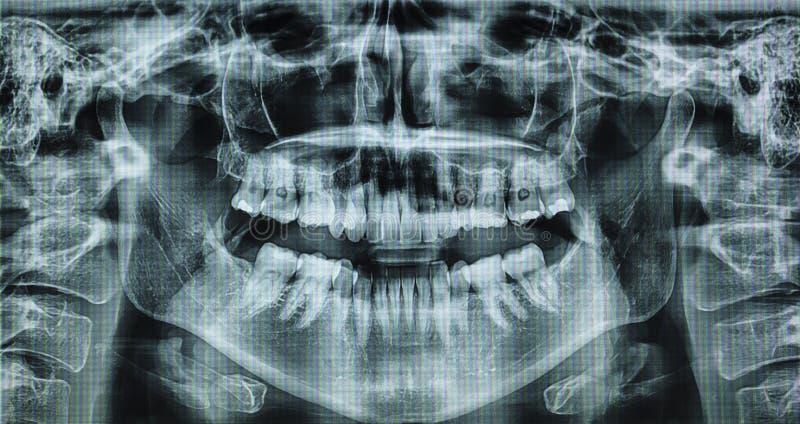 X promień kobiety usta w 360 obracaniu zdjęcie royalty free